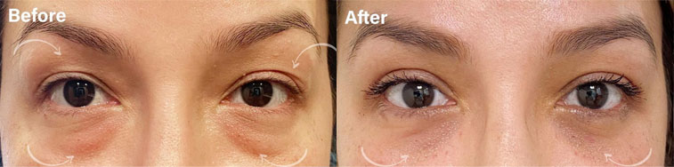 Beautiful before and after of our patient after undergoing upper and lower blepharoplasty with fat repositioning to lower lids