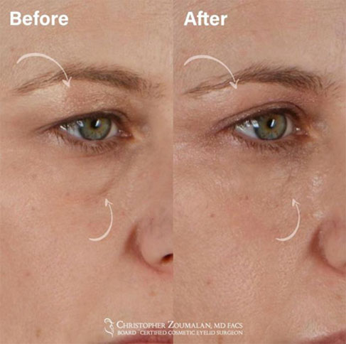 The quad blepharoplasty procedure combines the upper and lower eyelid blepharoplasty procedures - female patient before and after picture