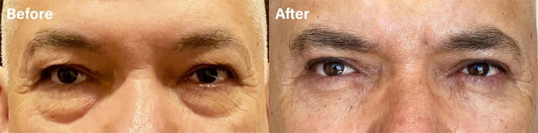 He had excess upper lid skin and under eye bags, and he underwent an upper and lower eyelid surgery. - male patient before and after picture