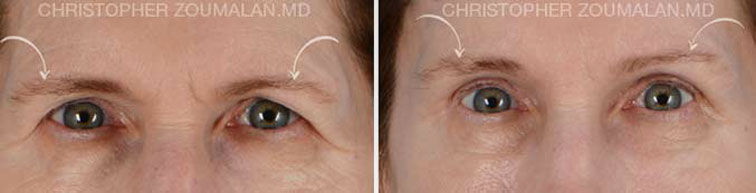 Tear trough hollow refers to hollowing along the eyelid closer to the nose - male patient before and after picture