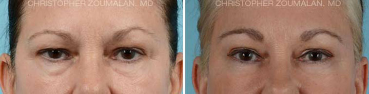 Tear trough hollow refers to hollowing along the eyelid closer to the nose - female patient before and after picture