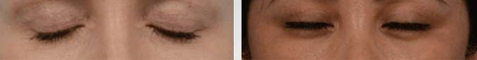 The quad blepharoplasty procedure is performed with the utmost precision and care to ensure minimal scarring - female patient before and after picture