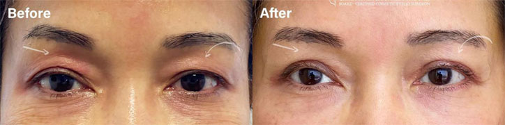 UPPER EYELID BLEPHAROPLASTY - female patient before and after picture