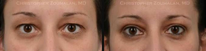 Completed upper eyelid blepharoplasty surgery to improve her appearance and enabled her peripheral vision to drastically increase. - female patient before and after picture