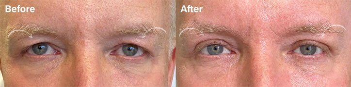 Beautiful MALE UPPER EYELID BLEPHAROPLASTY to improve excess upper lid skin. The excess skin is removed to help rejuvenate the eyes while preserving a natural look - male patient before and after picture