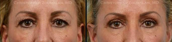 The patient complained about having excess upper eyelid skin and minimally invasive upper eyelid blepharoplasty was performed - female patient before and after picture