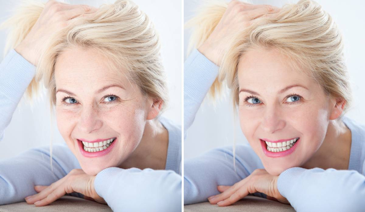 Benefits of non-surgical rejuvenation for middle aged woman.